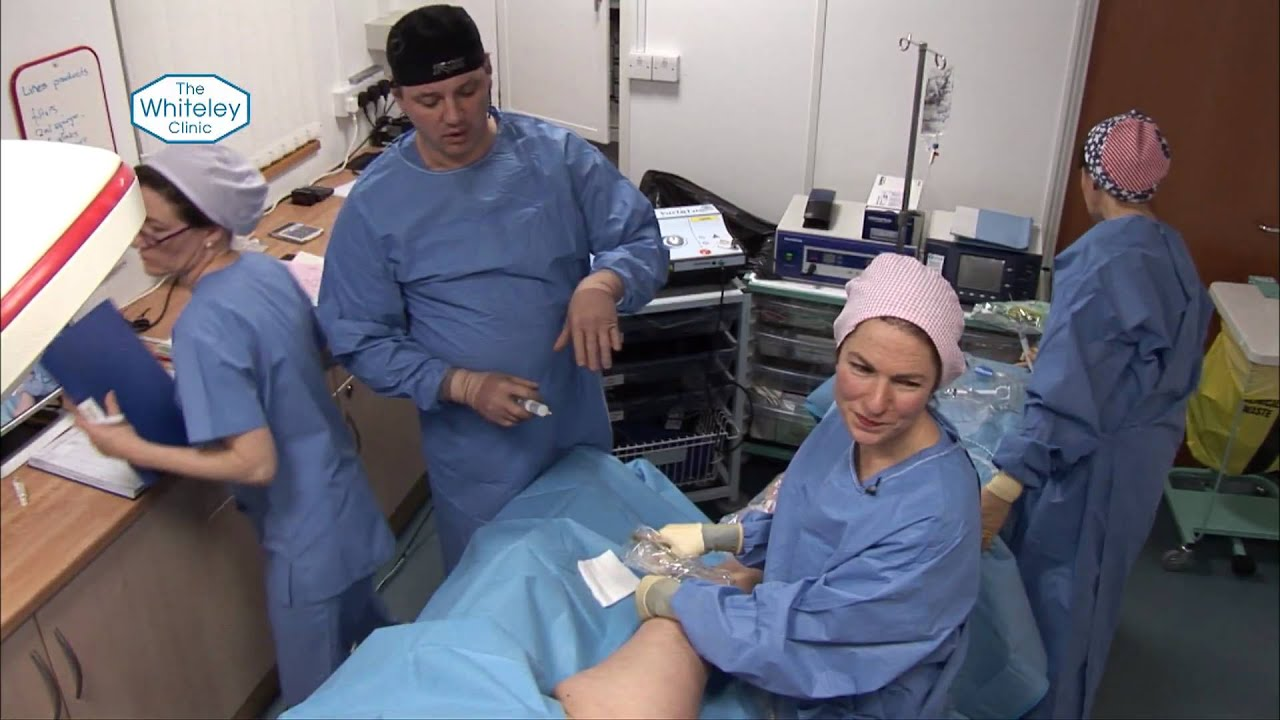Endovenous Laser Ablation Evla Treatment Of Varicose