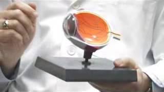 Contact Lenses Astigmatism & Contact Lenses