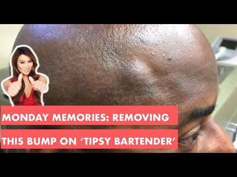 Download Monday Memories: Removing this BUMP on 'Tipsy Bartender'