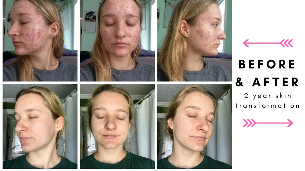2 Year Acne Transformation Hormonal Cystic Acne Getting Off The Pill Youtube