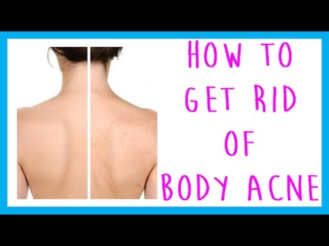 Faq How To Get Rid Of Body Acne Back Acne Chest Acne Leg Acne Arm Acne Youtube