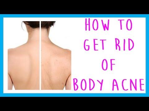 FAQ: How to Get Rid of Body Acne, (Back acne, chest acne, leg acne, arm acne)