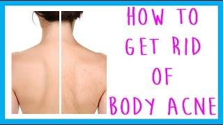 Faq How Get Rid Body Acne Back Acne Chest Acne Acne Arm Acne