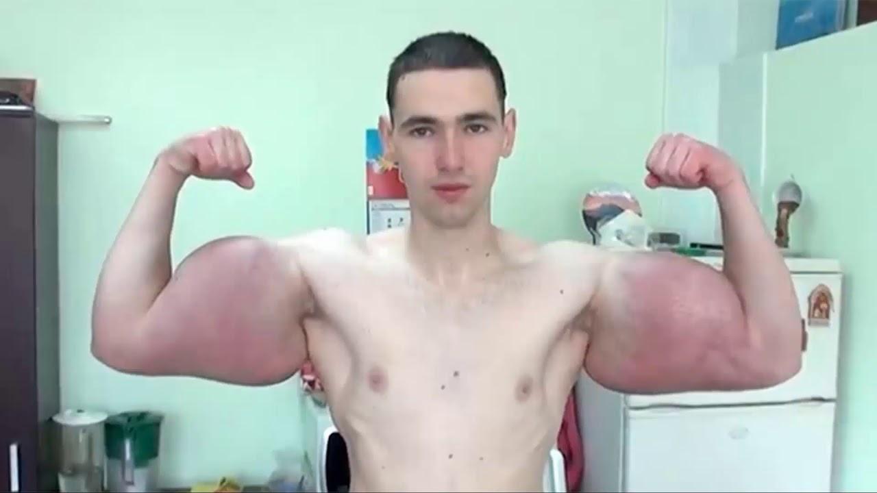 synthol steroid injection