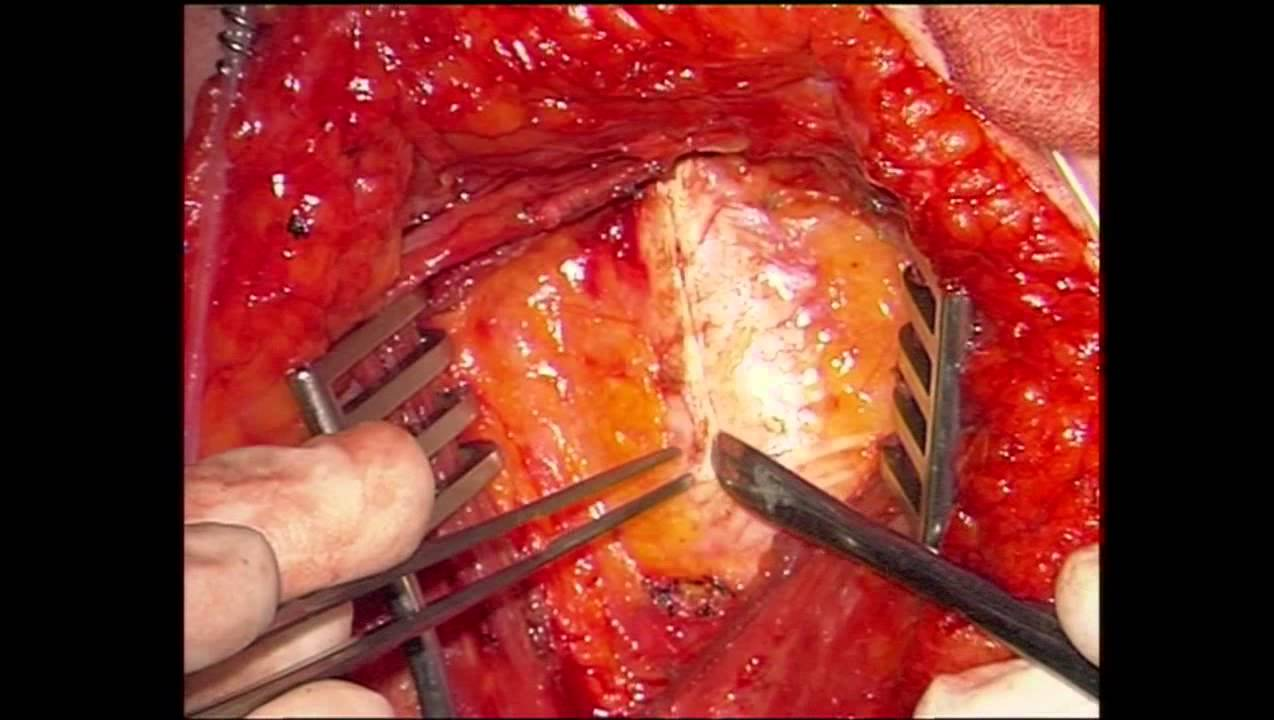 RCS Annals technical tip: Preparation of mammary vessels for breast ...