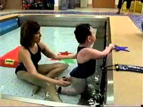 Arthrogryposis Multiplex Congenita Rehabilitation | HydroWorx Pool