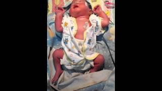 Respiratory distress syndrome neonatal