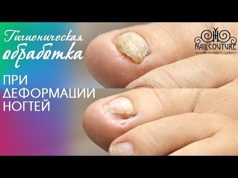 Аппаратный педикюр. Гигиеническая обработка при деформации ногтей