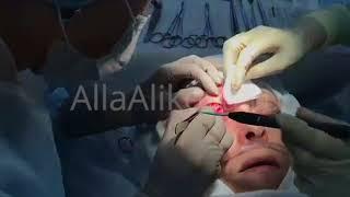 Блефаропластика верхних век: лазерная коагуляция сосудов, остановка кровотечения
