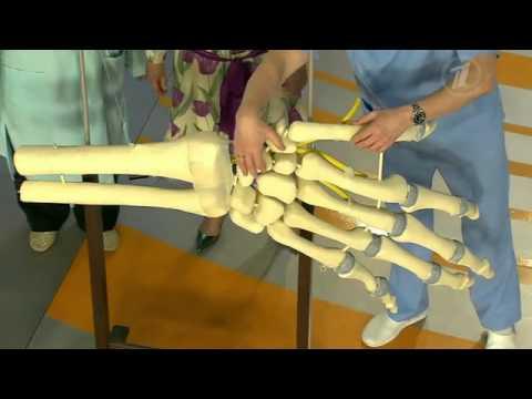 Перелом ладьевидной кости. Последствие неудачного падения