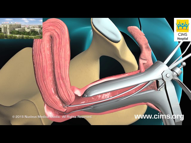 Endometrial Biopsy - CIMS Hospital