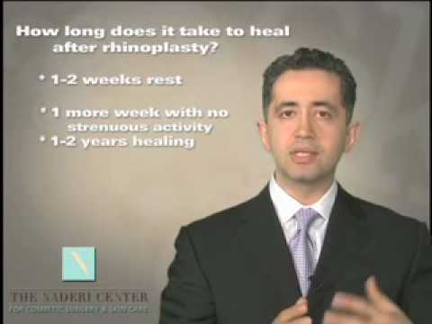 How long does healing take after Rhinoplasty - Washington DC - Dr. Shervin Naderi