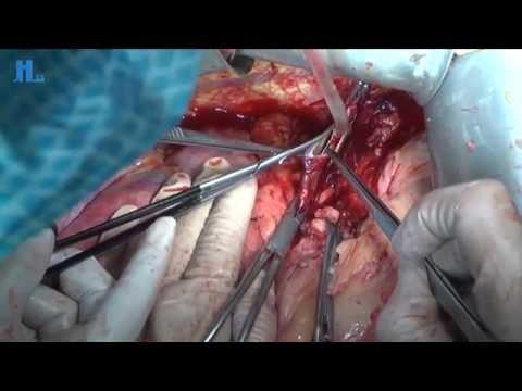 Liver transplantation Banska Bystrica Slovakia