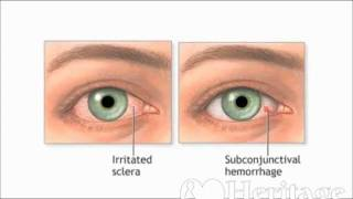 Heritage For The Blind -Remedies for Watery Eyes