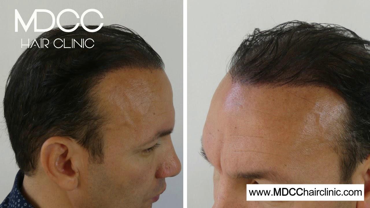 Resultat De La Micropigmentation Sur Cheveux Longs Avec Mdcc Hair