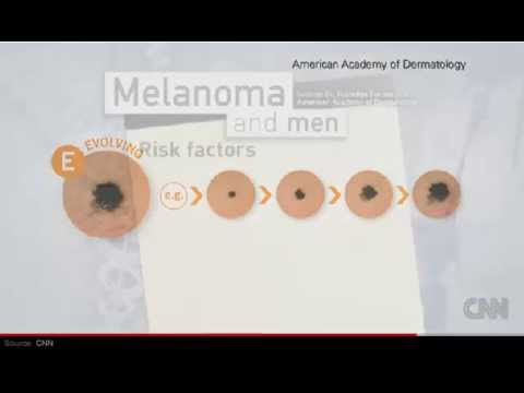 know warning signs of melanoma - skin cancer - youtube, Human Body