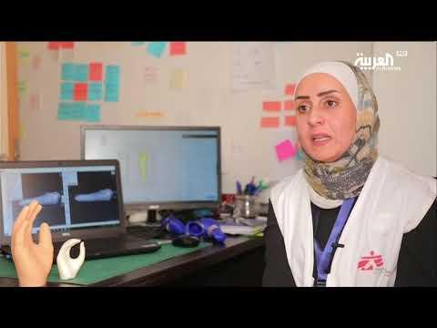 أطراف بتقنية الطباعة ثلاثية الأبعاد لضحايا الحروب  - 23:53-2019 / 3 / 19