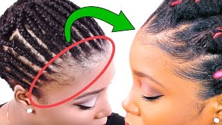 How To Grow Your Edges Back BEFORE & AFTER Results!