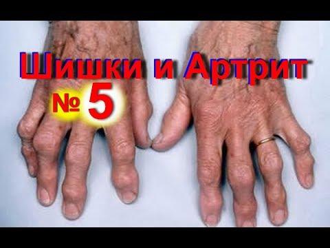 Воспаление суставов пальцев рук: лечение фаланг