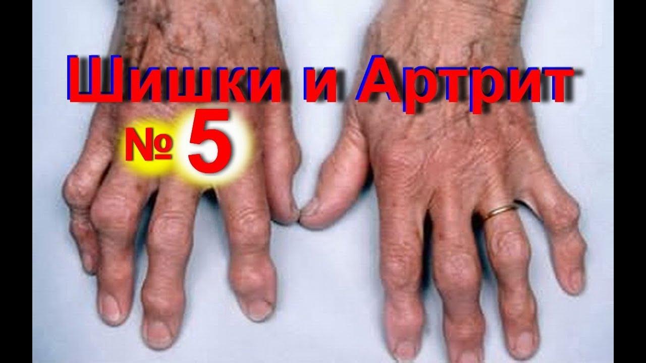 Причины, симптомы и лечение артрита пальцев рук