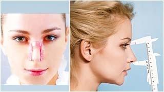 видео Прищепка исправит нос без операции