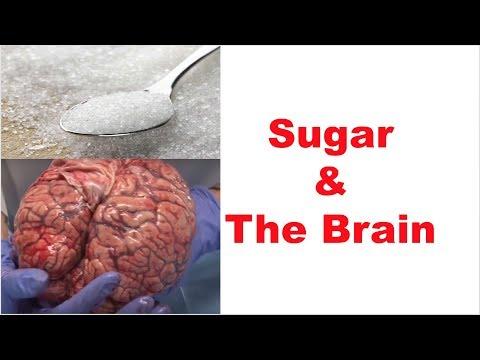 sugar-and-the-brain