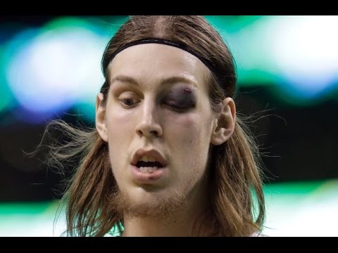 Kelly Olynyk 19 points,1 black eye vs Indiana Pacers 4/1/2015 - Full Highlights - [HD]