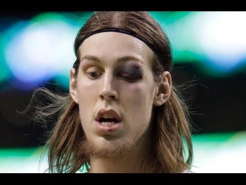 Kelly Olynyk 19 points,1 black eye vs Indiana Pacers 4/1/2015 - Full Highlights - [HD]
