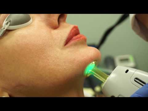 Laser Hair Removal - Upper Lip and Chin