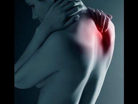 Защемление шейного нерва -