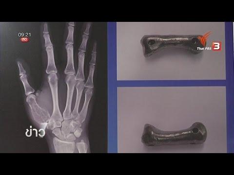แพทย์ไทยผ่าตัดใส่นิ้วเทียมไทเทเนียมสำเร็จรายแรกของโลก
