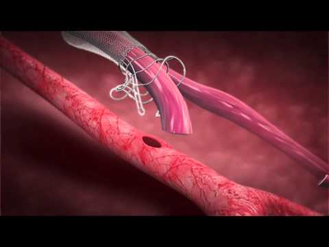 Laminate Medical Technologies - VasQ Implantation Procedure