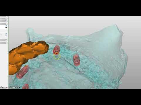 Dentalklinik Dr. Tóka 3D Planung Implantation 23401