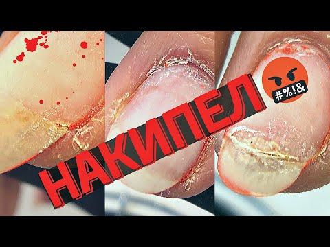ВЫВЕЛИ из себя 🤬 Изуродовали ногти