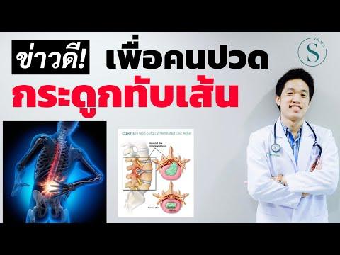ข่าวดี!!! สำหรับคนเป็นกระดูกทับเส้น /หมอนรองกระดูกทับเส้นประสาท รักษา กินยา /หมอซัน drsun