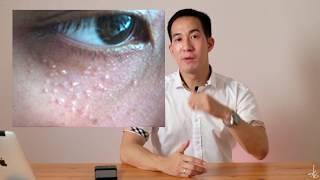 Cara Menghilangkan Milia pada Wajah | dr. Vania Utami.