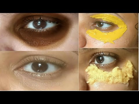 Remove Under Eye Dark Circles in 5 Days
