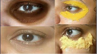 Remove DARK CIRCLES & Under Eye WRINKLES, Eye Bags, Anti Aging…
