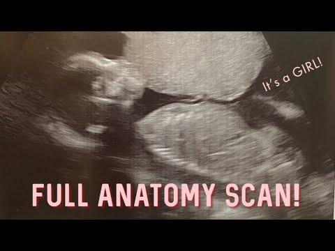 **FULL ANATOMY SCAN ULTRASOUND** Our 20 WEEKS DOCTORS VISIT!