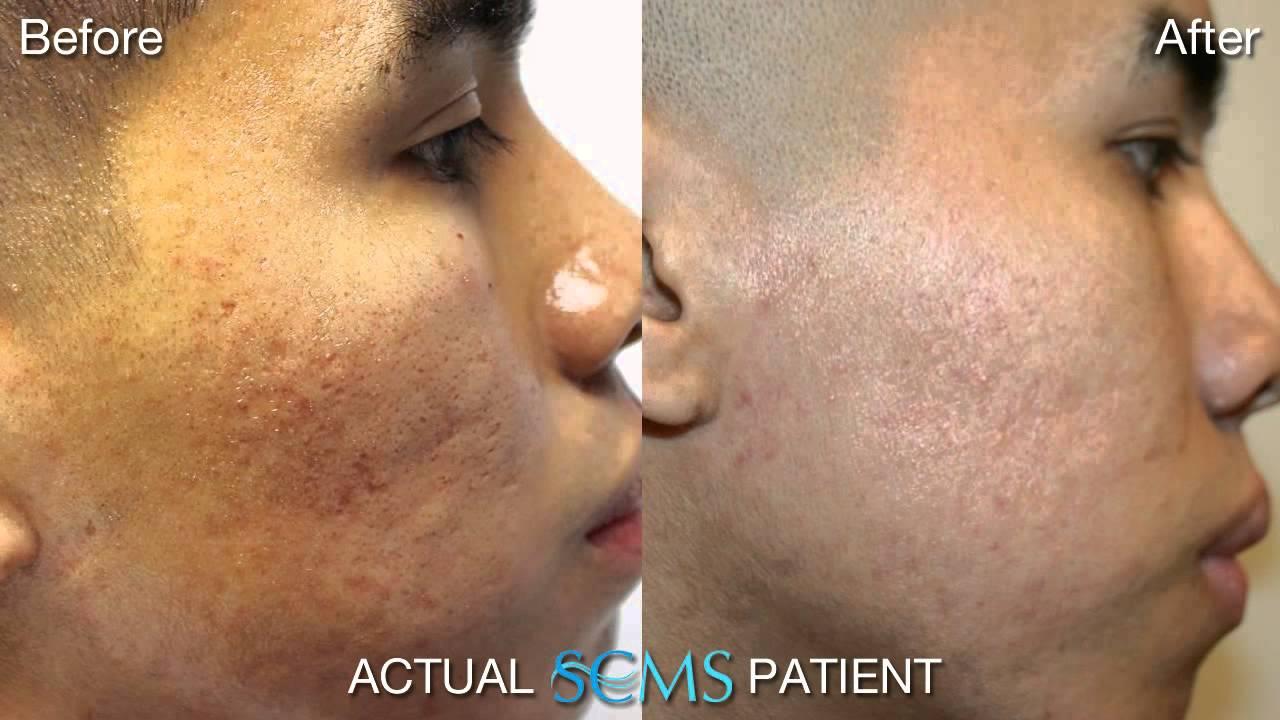 July 2013 Laser Skin Resurfacing For Dark Skin Tone