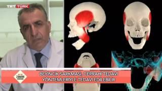 Prof  Dr  Hidayet Akdemir Konu  Beyincik Sarkması PROF. DR. HİDAYET AKDEMİR