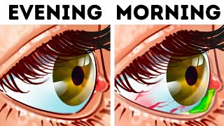 Why Your Eyes Get Crusty When You Sleep