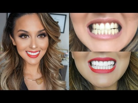 My Teeth Transformation l Veneers Experience