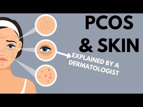 pcos-&-skin-|-dermatologist-review