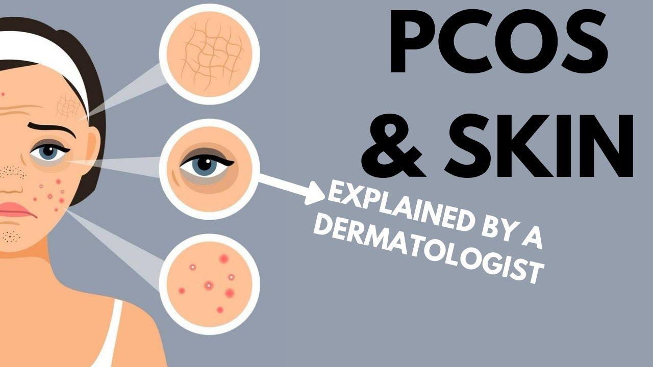 PCOS & Skin   Dermatologist Review