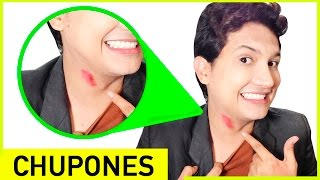 How To Get Rid Of Hickeys Fast From Neck And Face | Video Tutorial | Andyzaturno