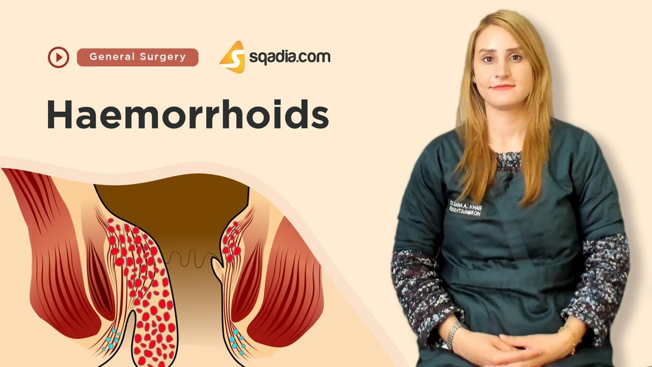 Haemorrhoids | General Surgery Video Lectures | Medical Student Education | V-Learning #Generalsurgery