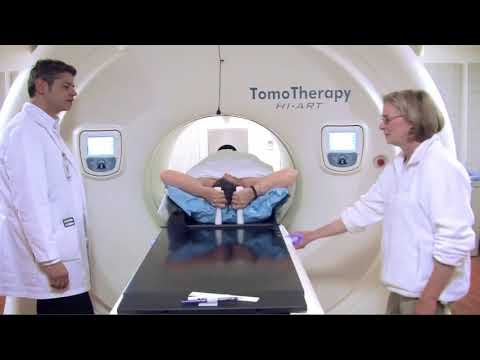 Benefits Of The TomoTherapy System For Radiation Oncologists
