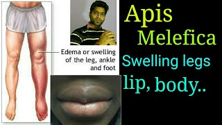 Apis mellifica homeopathy remedy for swelling of eyes, legs, body, & bladder. stopped burning urine.