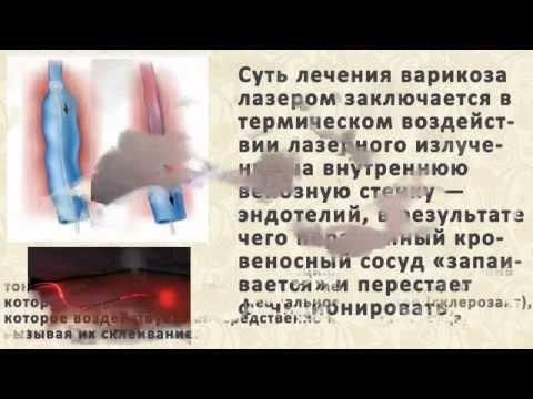 Антикоагулянт Нижфарм Гепариновая мазь